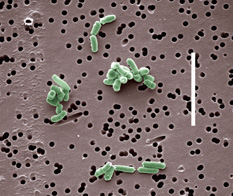 Brevibacterium linens, one of the bacterial species that produces ectoine