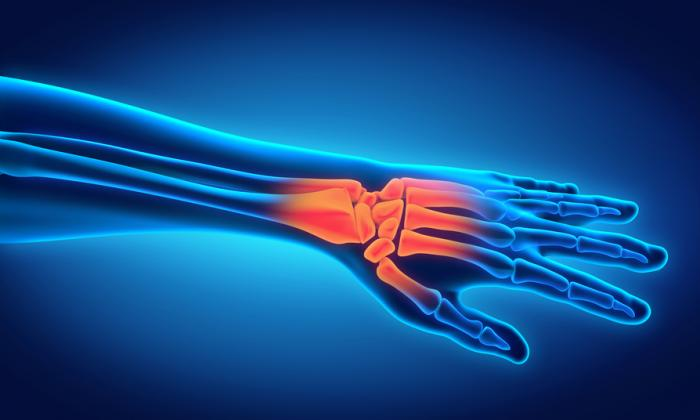 an-image-showing-wrist-pain