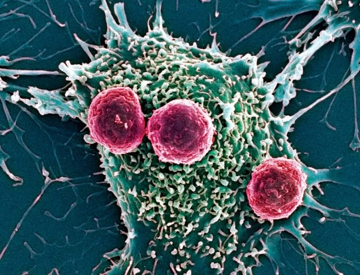 immune cells cancer